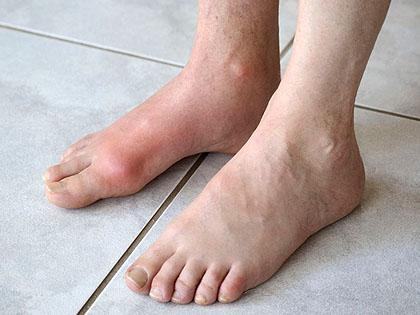nagylábujj izületi fájdalom mágus artrózist kezelő