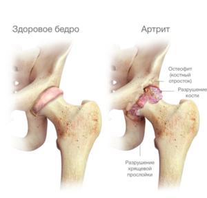 deformáló csípőízület osteochondrosis