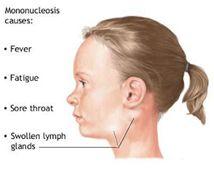 nyaki mellkasi mellkasi osteochondrozis fájdalomcsillapítói