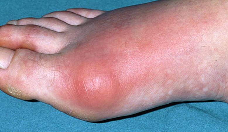 hogyan lehet enyhíteni a lábujjak ízületi gyulladásait