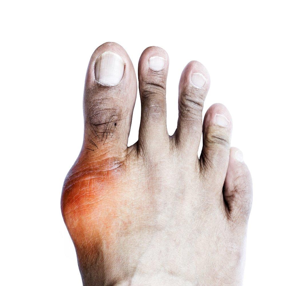 a kézízületek ízületi rendellenességei