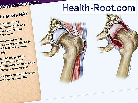 mely országokban kezelik a rheumatoid arthritist a vállízület fájdalma lehet miért