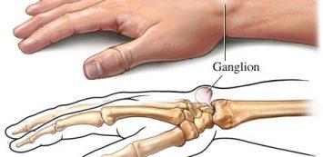 a könyökízület és az alkar csontok sérülései deformált artrózis leállítja a kezelést