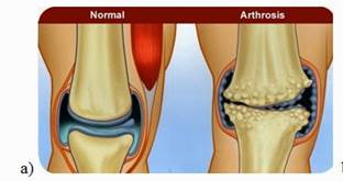 könyökízület osteoarthrosis kezelése 2 fokkal