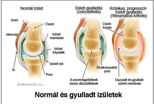 a térd ízületi gyulladásának és ízületi gyulladásának kezelése menü térd artrózisához