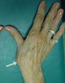 csukló ligamentum-töréskezelés