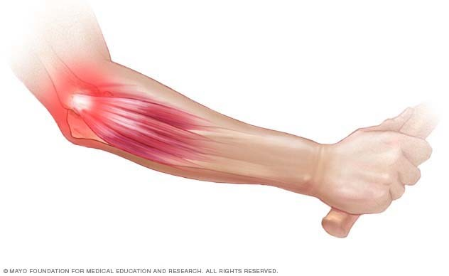 a könyökízület és a csont fájdalmainak okai