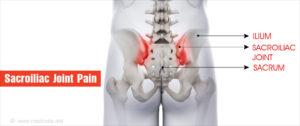 A csípő-keresztcsonti ízület gyulladása (sacroileitis)