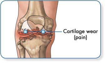 ízületek osteoarthrosis kórtörténetét hogyan lehet gyógyítani a térdgyulladást