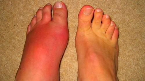 nagylábujj izületi fájdalom az artrózist kezeli