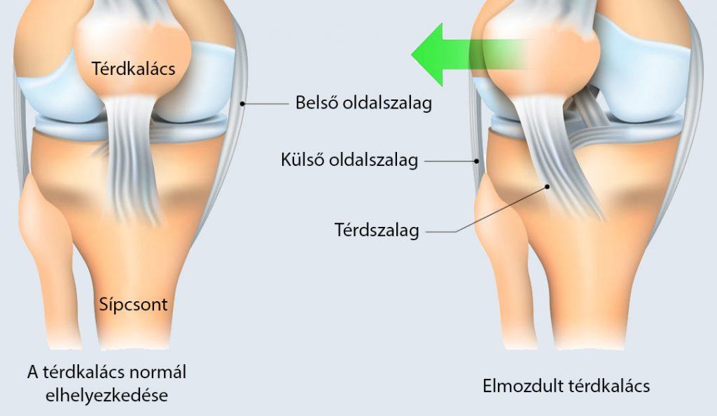 térdízület ízületi kezelése ultrahang kezelés