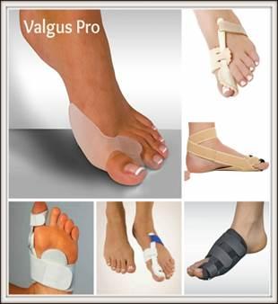 deformáló artrózis a nagy lábujj, hogyan kell kezelni rheumatoid arthritis a vállízületben