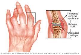 allergiás reakciók a kezek artritisz könyök-sprain kezelés