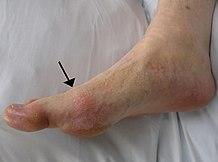 artróziskezelő emberek