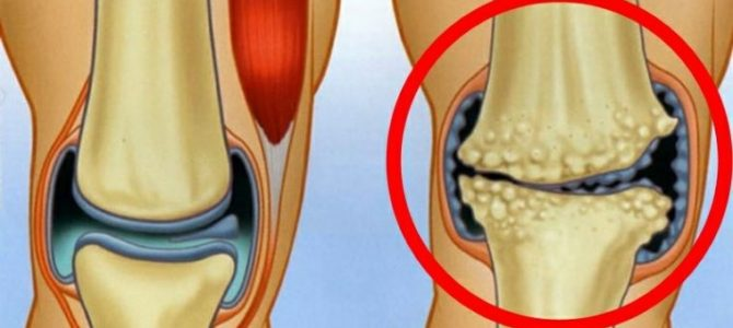 váll artritisz kezelése
