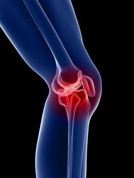 ízületi gyulladásos tinktúra a bal térdízület deformáló artrózisa