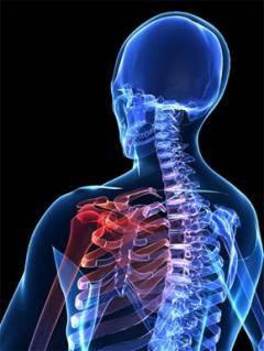milyen kenőcsök használhatók a térdízület artrózisának kezelésére - halasszallo.hu