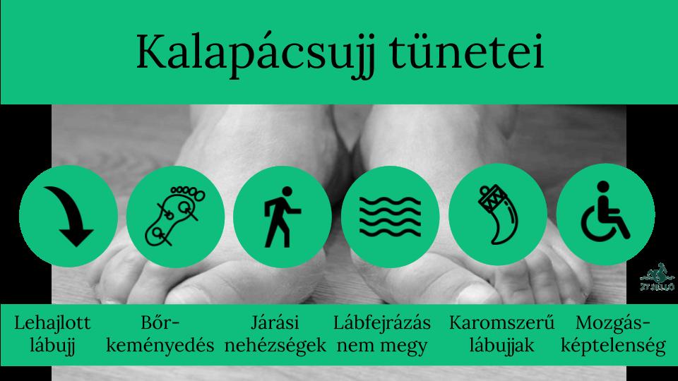 Miért fáj a nagy lábujj? 6 ok - Masszázs July