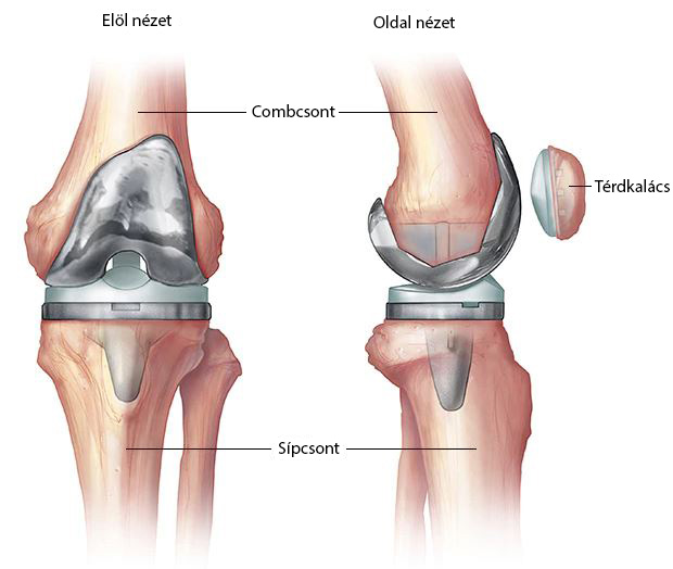 hogyan kezeljük a térdízület ízületi zsákjának gyulladását a bal vállízület fájdalmának oka