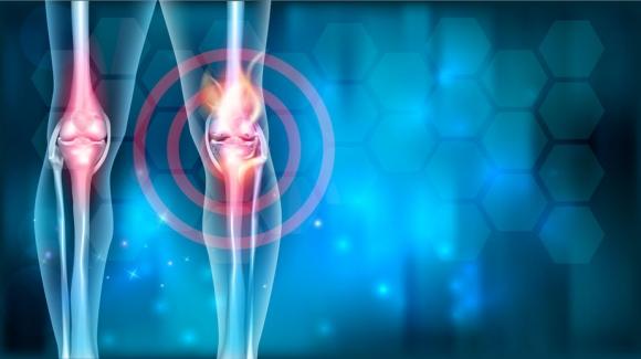onkológia és ízületi fájdalmak