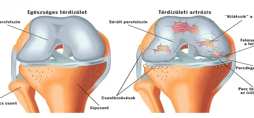 a térd artrózisának minden jele ízületi fájdalom fáradtság apátia