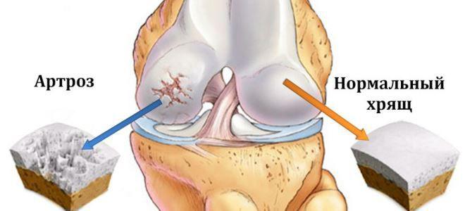 térdízületek deformáló artrózisa 1 2 fok miért fáj a karom ízületei alvás után