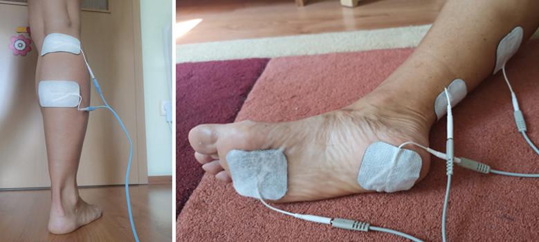 bokagyulladás lapos lábak miatt vállízület kenőcs