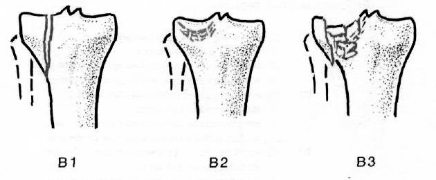 a kézízület helyreállítása törés után hogyan lehet enyhíteni a lábujjak ízületi gyulladásait