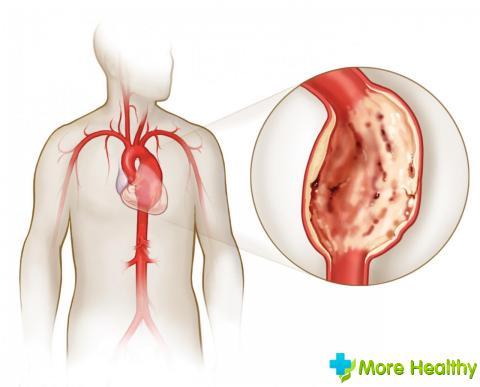 Mitrális szelepprolapszis: tünetek, okok és kezelés - Szív Egészség -