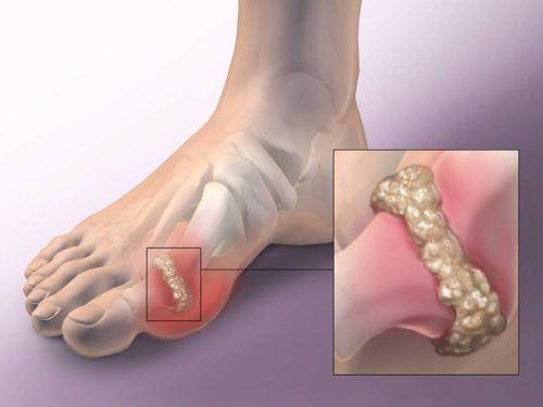 fájdalom ízületi láb ízületek az ujjakon duzzadt, hogyan kell kezelni