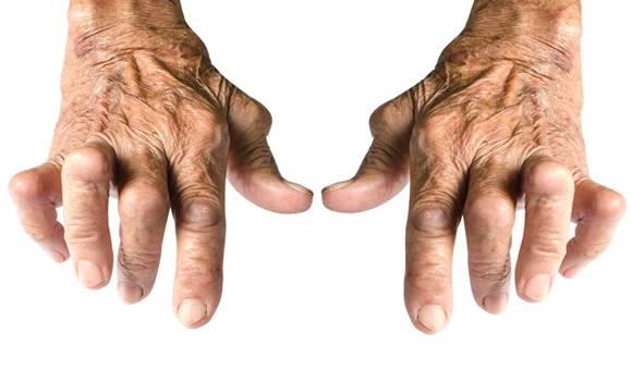 a legjobb kenőcs a kéz ízületi gyulladásában injekciók és kenőcsök ízületi fájdalmak kezelésére