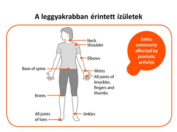 ízületi mozgások rheumatoid arthritisben szteroidok ízületi fájdalmak