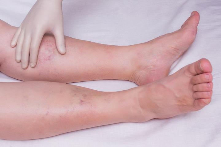 11 figyelmeztető egészségügyi állapot, amely lábduzzanatot okozhat