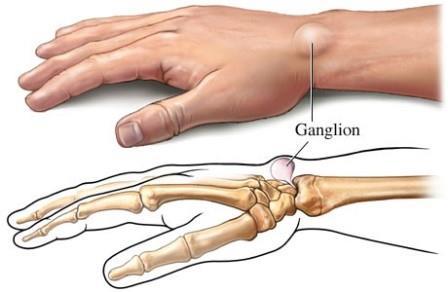 a jobb kéz könyökízületében a fájdalom okai