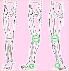 nyomáscsökkentő szerek a nyaki gerinc csontritkulásában a térdízület 1. fokozatú tünetei