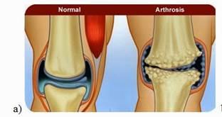 Arthrosis - kialakulásának lelki okai