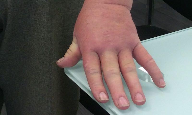 artrosis 3. stádiumú kezelés