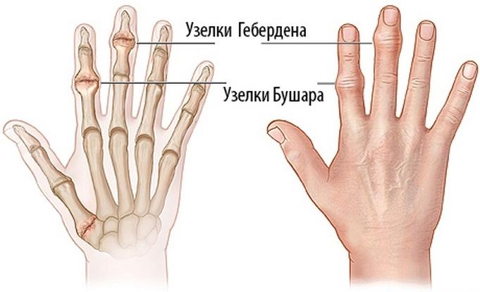 a csontok és a kézízületek fájnak