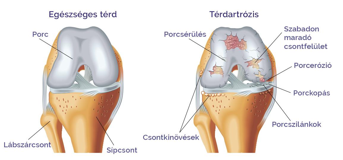 artrózis fájó térdkezelés
