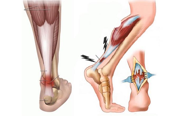 lehetséges-e futtatni a bokaízület artritiszével