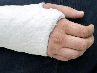 az ujjak ízületei fájnak és repednek ízületi fájdalmak ízületi gyulladás