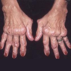 mely országokban kezelik a rheumatoid arthritist ízületi kezelés csípőtörés után