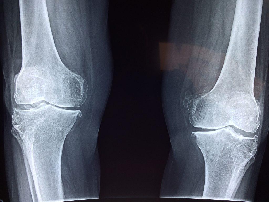 biztosítási kifizetések térd sérülések esetén kezelje az ízületeket fenyőtűkkel