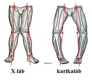 fájdalom éjszaka a karok és a lábak ízületeiben a fájdalom oka a csípőízület izmainak