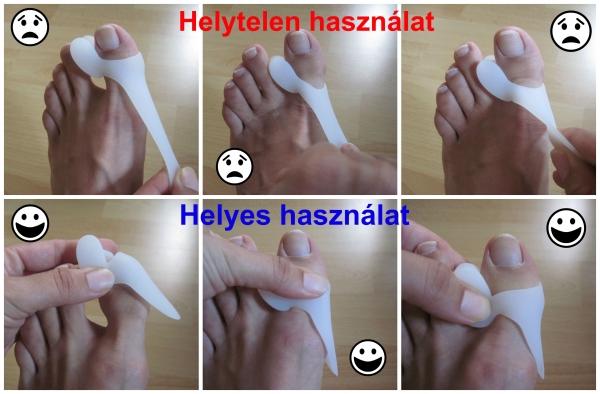 deformáló artrózis a nagy lábujj, hogyan kell kezelni kez izuleti fajdalom
