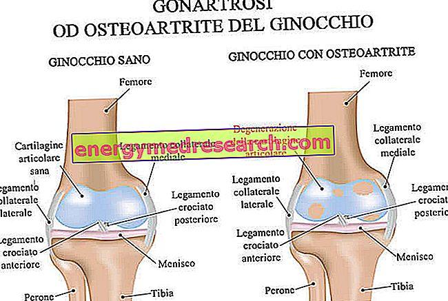 lisztkészülék artrózis kezelésére