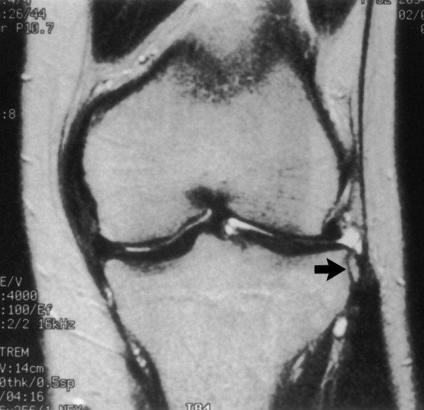 Friss térdszalag sérülések