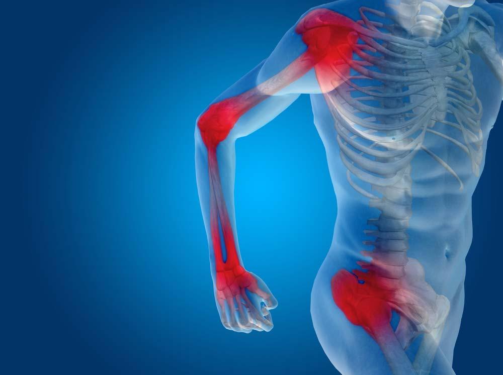 vitaminok az osteochondrozis gyógyszerneve osteoarthritis kezelése indovazin