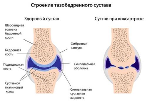 Coxarthrosis 1 fok, a csípőízület kezelése