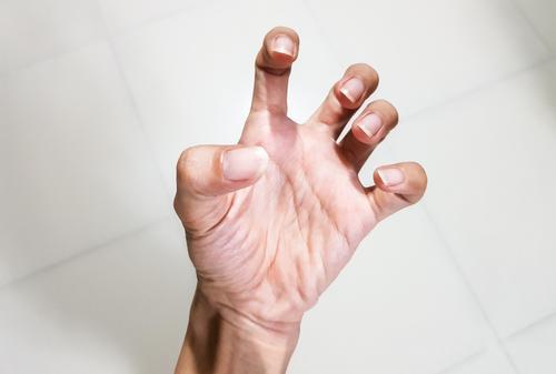 mitralis szelep prolaps és ízületi fájdalom könyökízület izombetegsége